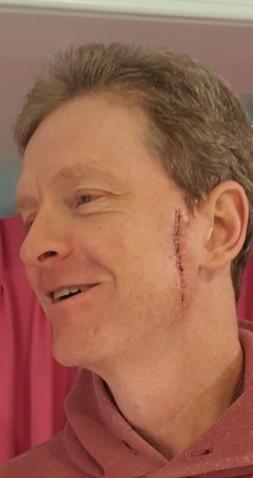 DT cancer scar (2)