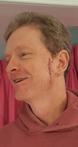 dt cancer scar